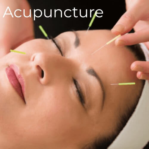 Woman undergoing acupuncture treatment
